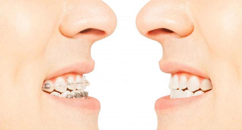 Teeth Alignment Procedure