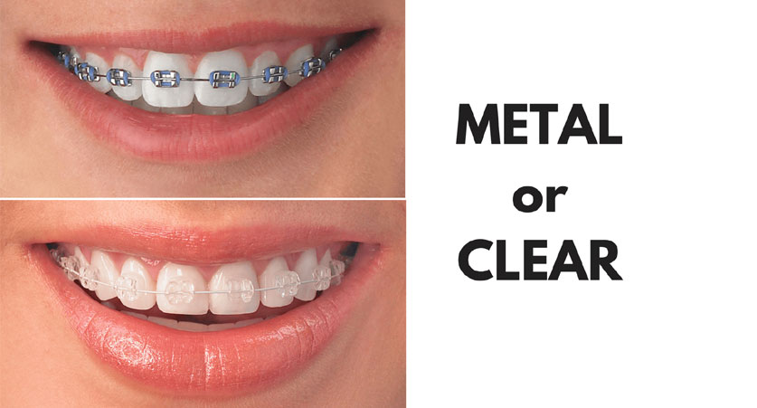 Metal or Invisible Braces