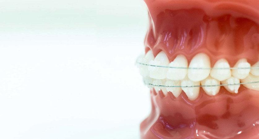 clear braces near me