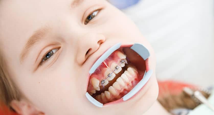 kids teeth braces